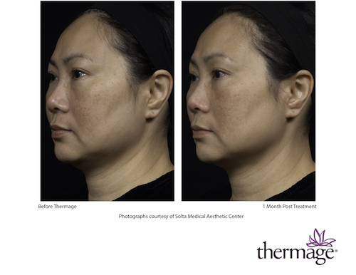 thermage_female_photo