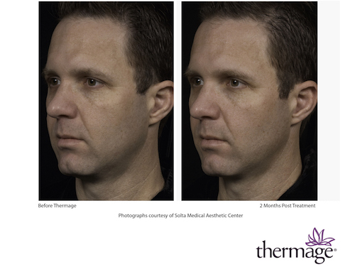 thermage_male_photo